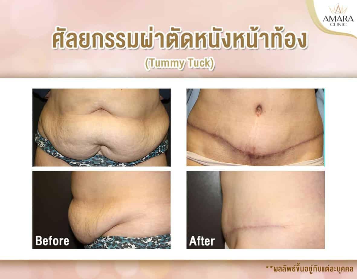 ผ่าตัดหน้าท้อง (Tummy Tuck)