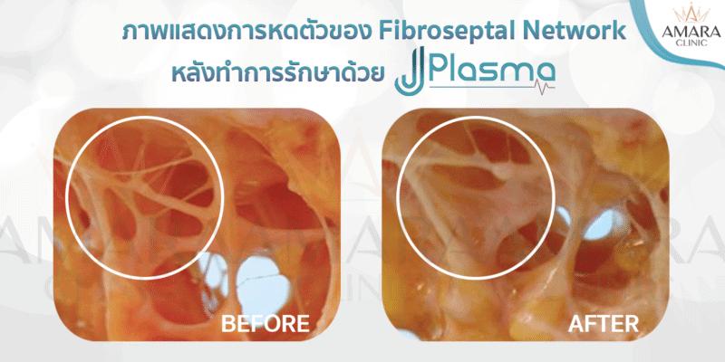 การทำงานของ J Plasma